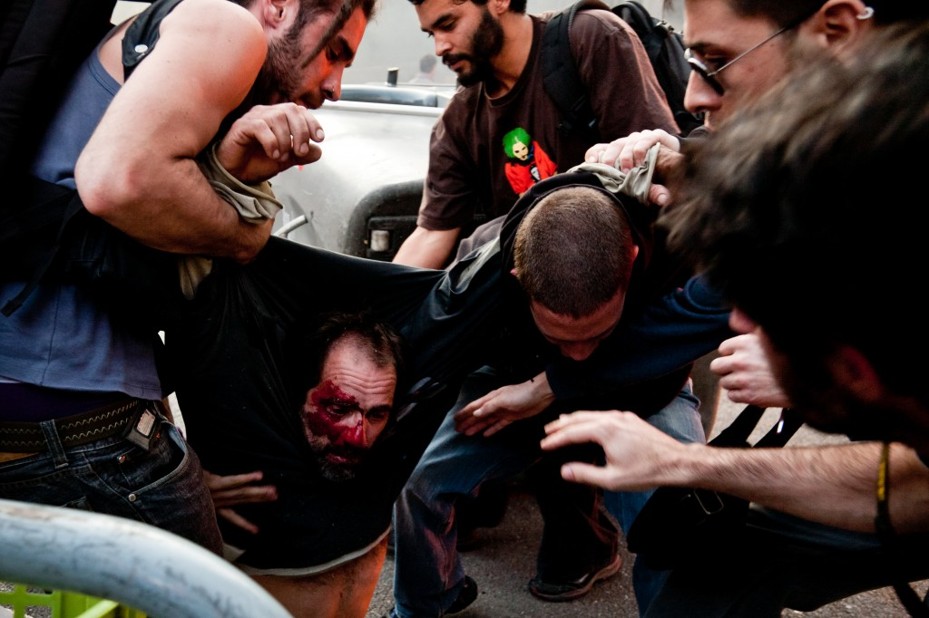 Protesters wounded by rubber bullets during the general strike, Barcelona. Photo Jesús G. Pastor, copyright Demotix 3/29/12.