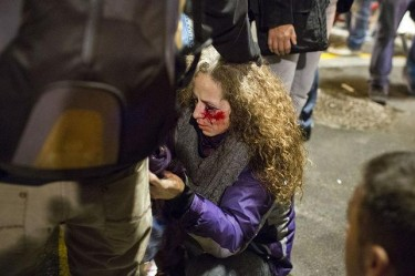 Barcelona: mulher ferida que poderá vir a perder um olho. Fotografia da página de Facebook «AntenapezTV»