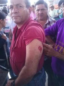 Cafetero herido en enfrentamientos con la policía.