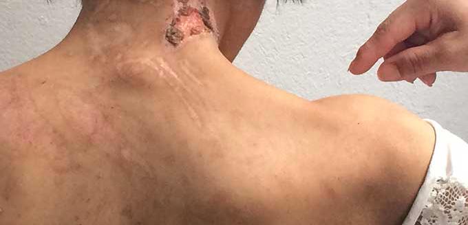 Huellas del maltrato sufrido por la joven mexicana esclavizada