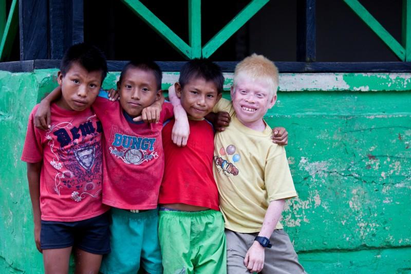 Niños guna, incluido un niño albino. Foto en Flickr del usuario Ben Kucinski (CC BY 2.0).